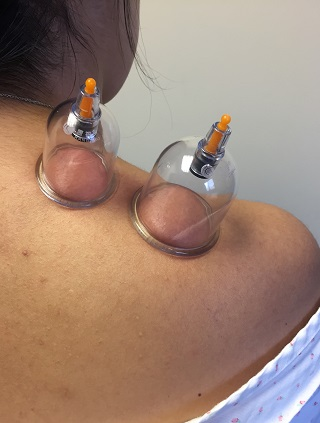 Cupping Picture